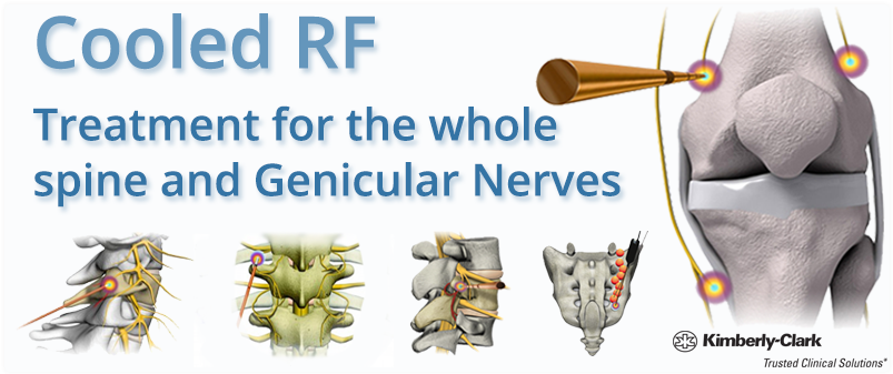 Cooled RF Treatment for the whole spine and Genicular Nerves - Kimberly-Clark BVM Medical